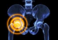 Hip Pain Treatment Guide