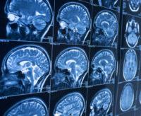 Brain Tumor Treatment Guide