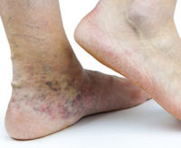 Sclerotherapy Treatment Guide