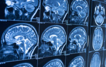 Brain Tumor Treatment Guide