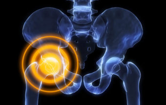 Hip Pain Treatment Guide