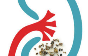 Kidney Stones Treatment Guide