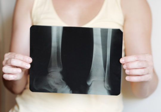 Osteoporosis and Bone Densitometry Testing